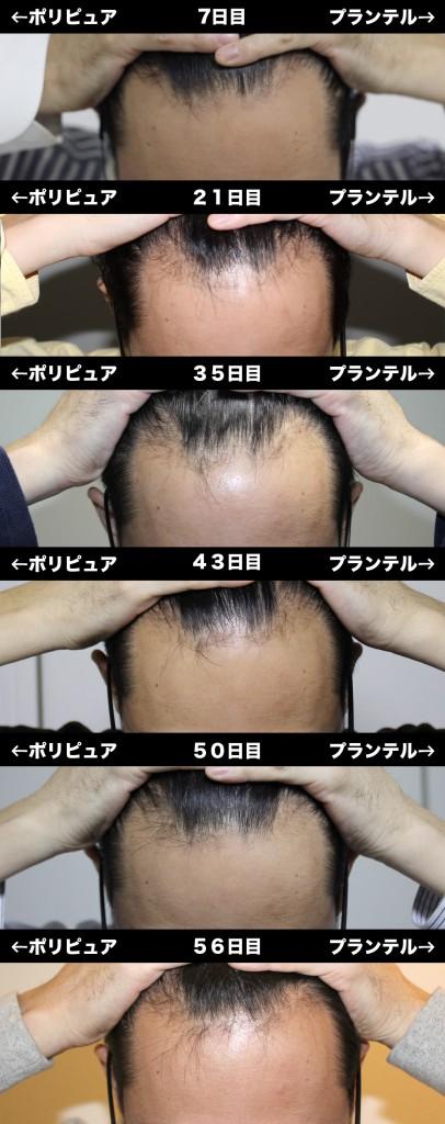 7_56_hikaku