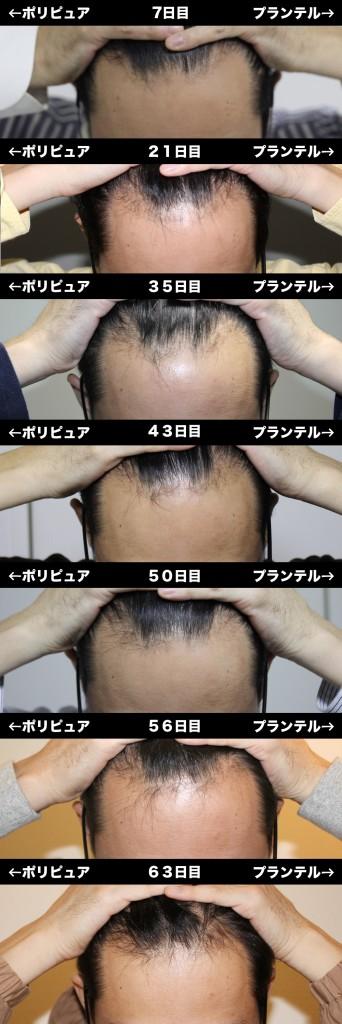 7_63_hikaku