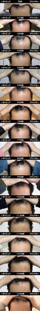 7_141_hikaku